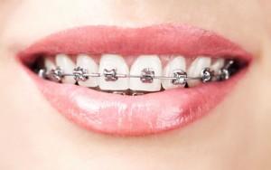 teeth with braces   marpole orthodontics